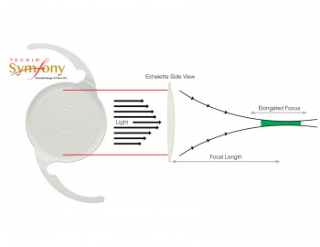 symfony lens is a new design for cataracts
