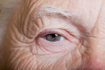 An older person with arthritis that affects their eyes.