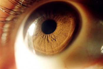 A cornea that received a transplant.