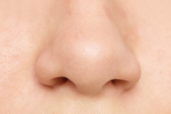 A nose with a deviated septum