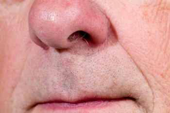 An older person's nose
