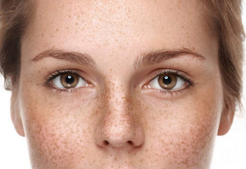 A woman with eye freckles