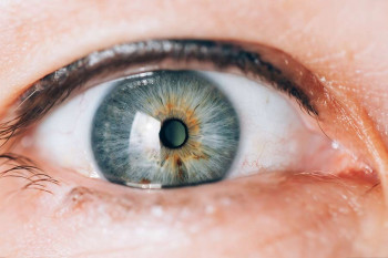 An eye with an implantable contact lens