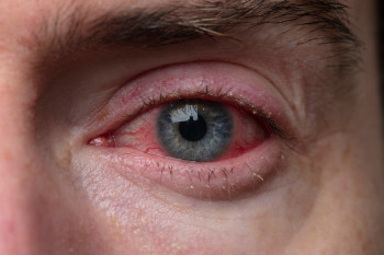 Someone with COVID and conjunctivitis