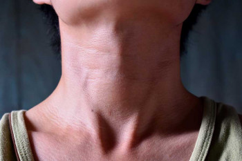The thyroid, which can have hyperthyroidism or hypothyroidism
