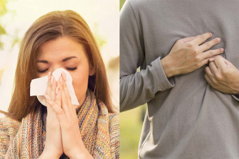 Allergies or acid reflux