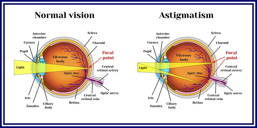 Astigmatism care is available at CEENTA