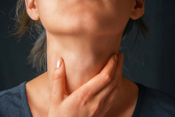 A woman has throat ulcers.