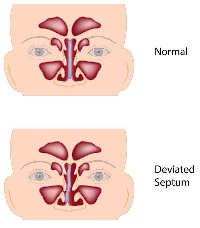 Deviated septum- Septoplasty