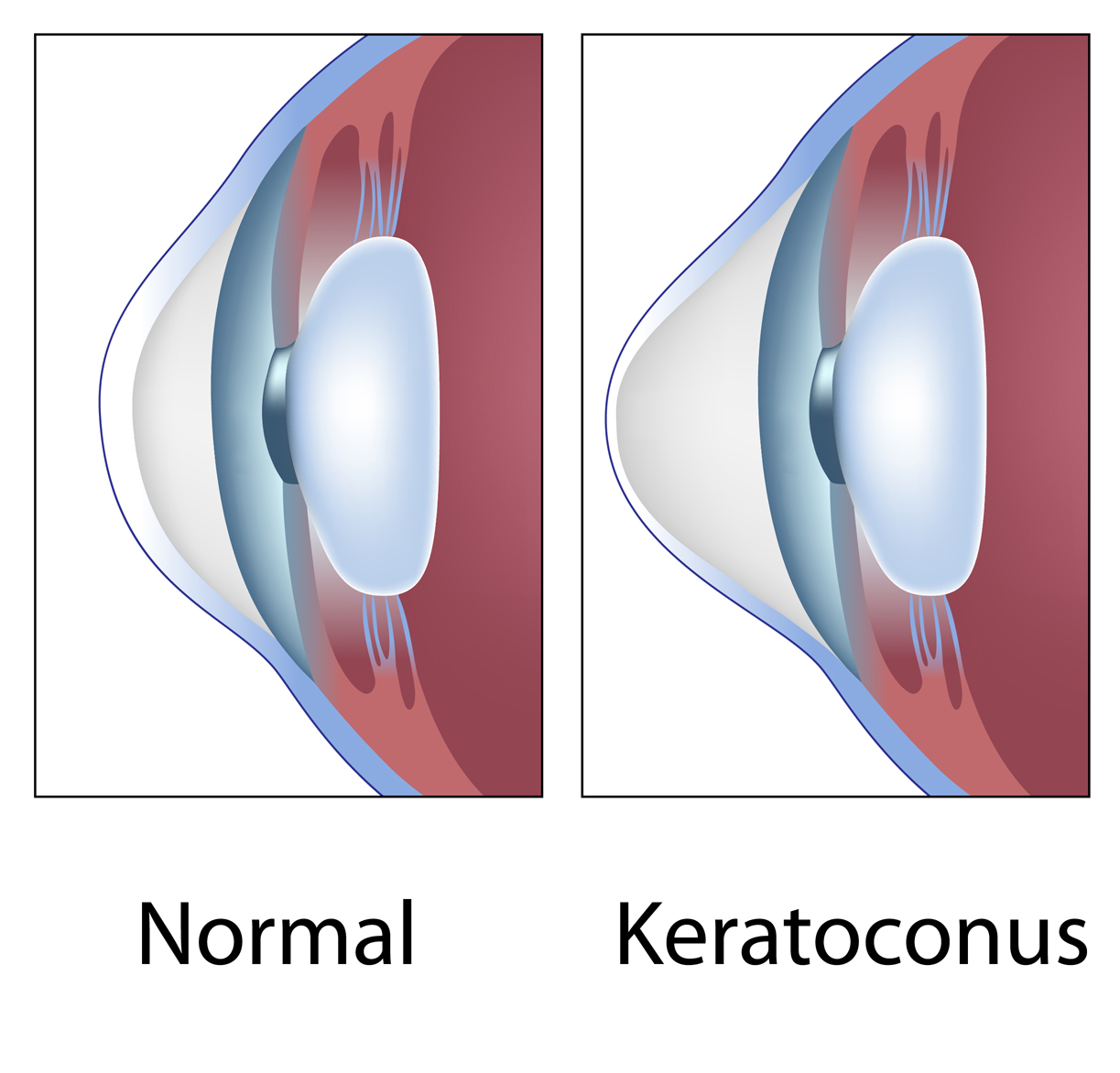 keratoconus image and normal eye image