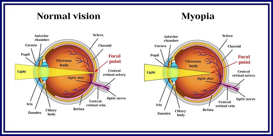 Myopia care is available at CEENTA
