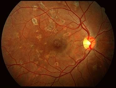 What Is Uveitis Symptoms And Treatment Charlotte Ceenta