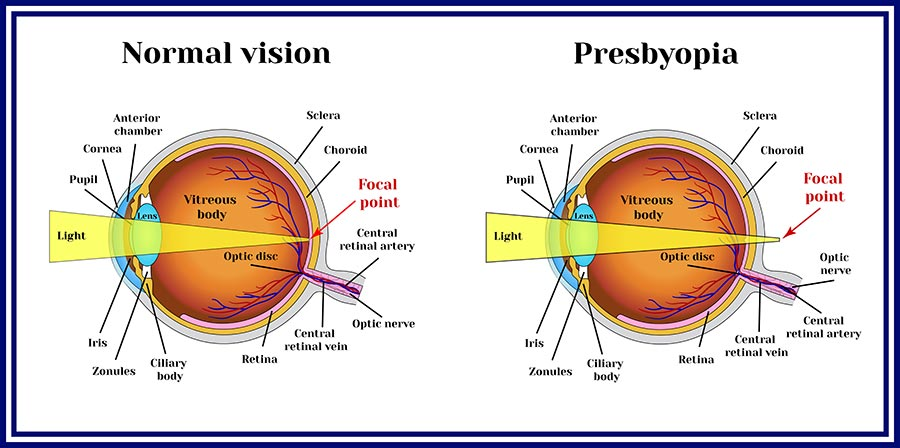 Presbyopia care is available at CEENTA