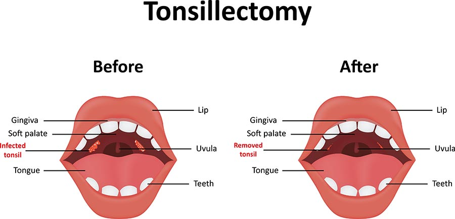 Tonsils and adenoids, tonsil removal