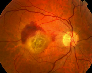 Wet Age-Related Macular Degeneration care is available at CEENTA